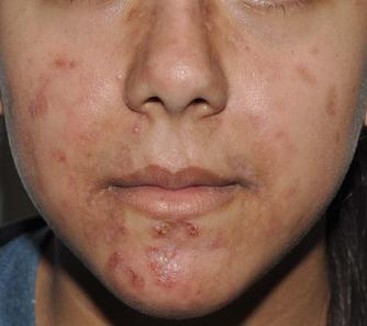 Photo of acne excoriee patient 4 weeks after homeopathic treatment with natrum muriaticum 1M (constitutional treatment) and calcarea phosphorica 30C.  Her excoriations have almost completely healed.  Interestingly, her anxiety and severe menstrual cramps have improved as well.  Her insomnia has completely resolved.