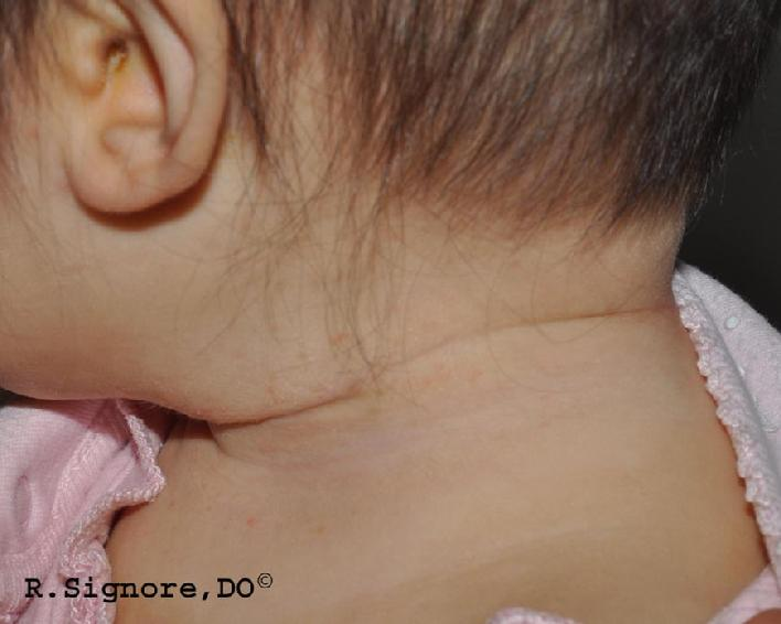 This is the same infant, shown above, after 12 weeks of homeopathic natural treatment.  The patient's eczema on the neck has healed nicely.  Notice that the eczema behind the ear and on the scalp has also healed.  Note:  No steroids, antifungals, or antibiotics were used.