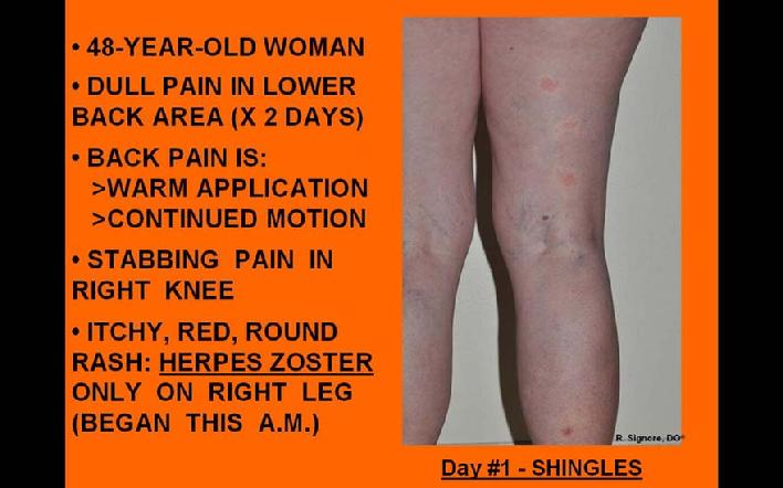 This 48 year old woman was seeh by Dr. Signore with a painful rash which appeared on her right posterior leg 12 hours previously.  One day prior to this, she experienced right lower back pain.  She was diagnosed with acute herpes zoster (shingles).