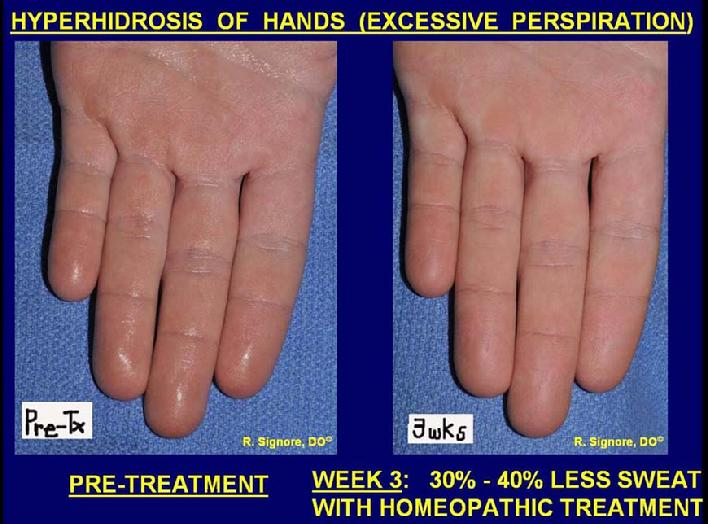 The above 2 photos show a healthy man treated at Dr Signore's Tinley Park Dermatology Office for excessive perspiration of the hands, feet, and underarms which he had for 14 years.  The next photo shows this man's hands and fingers which are 30% to 40% less sweaty after taking his individualized homeopathic remedy.  He then started a stronger strength of the same natural homeopathic remedy once per week.  After 7 weeks of homeopathic treatment, his excessive sweating is now approximately 75% better.  His palms are much less sweaty.  He can now walk barefoot at home.  He is pleased that he can now wear lighter colored shirts, now that his underarms sweat less.