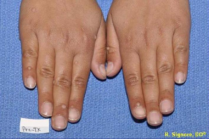 common warts on legs. common warts on fingers.