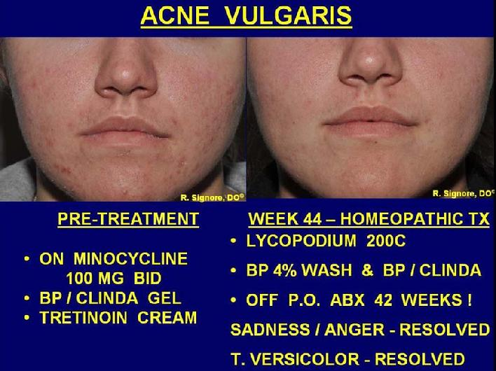 In the photo on the left, this young lady was taking minocycline, a strong prescription antibiotic, from another dermatologist.  Despite this, her face still was breaking out with acne pimples.  In the photo on the right, she is seen at week 44 of homeopathic treatment, along with benzoyl peroxide wash, and benzoyl peroxide /  clindamycin gel.  Her facial acne is approximately 95% improved.  Note, she has been off acne antibiotic pills for the last 42 weeks.