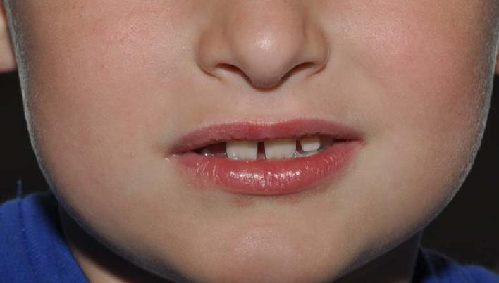 Mild Perioral Dermatitis Lips Note perioral dermatitis has