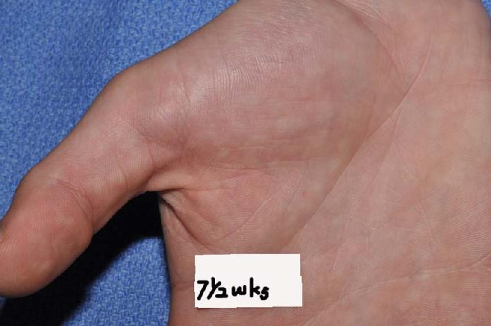 This photo from a patient seen at Dr. Signore's office, which shows palmar hyperhidrosis which now 70% improved with homeopathic constitutional treatment.  PHOTO COPYRIGHT, DR. SIGNORE, 2012