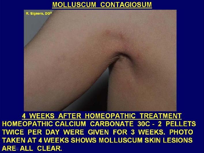 Photo of patient seen in Dr. Signore's dermatology office after successful treatment with homeopathic calcium carbonate twice daily for three weeks.  Note: all molluscum contagiosum lesions have gently resolved and are all clear at four weeks.